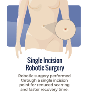 Robotic Surgery in orange county