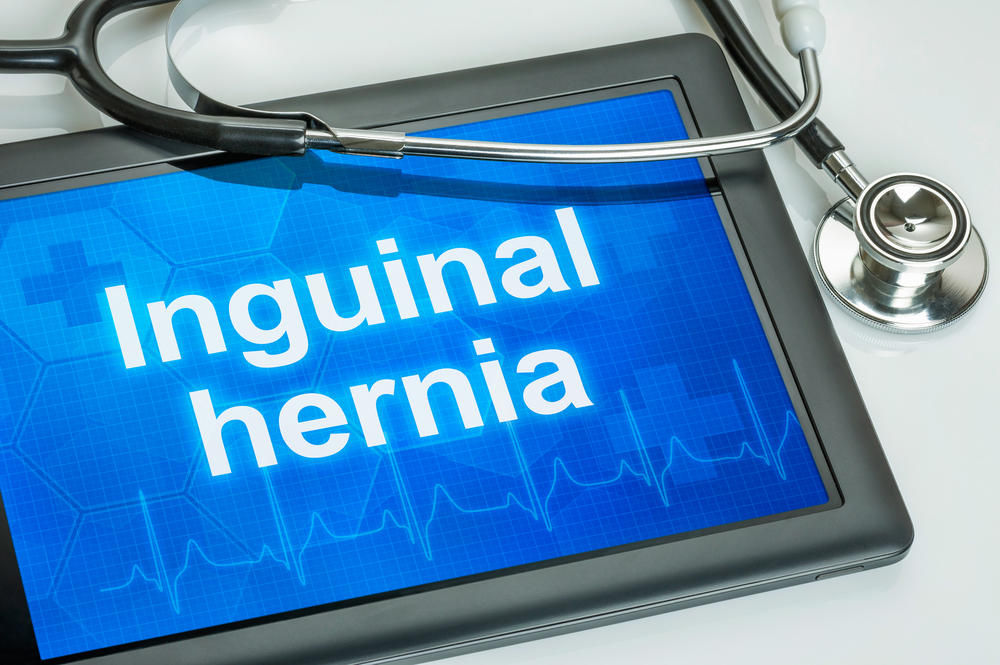 The Dos and Don'ts After Inguinal Hernia Surgery